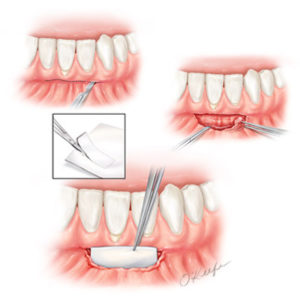 Laurie O'Keefe Gum Graft Procedure Illustration