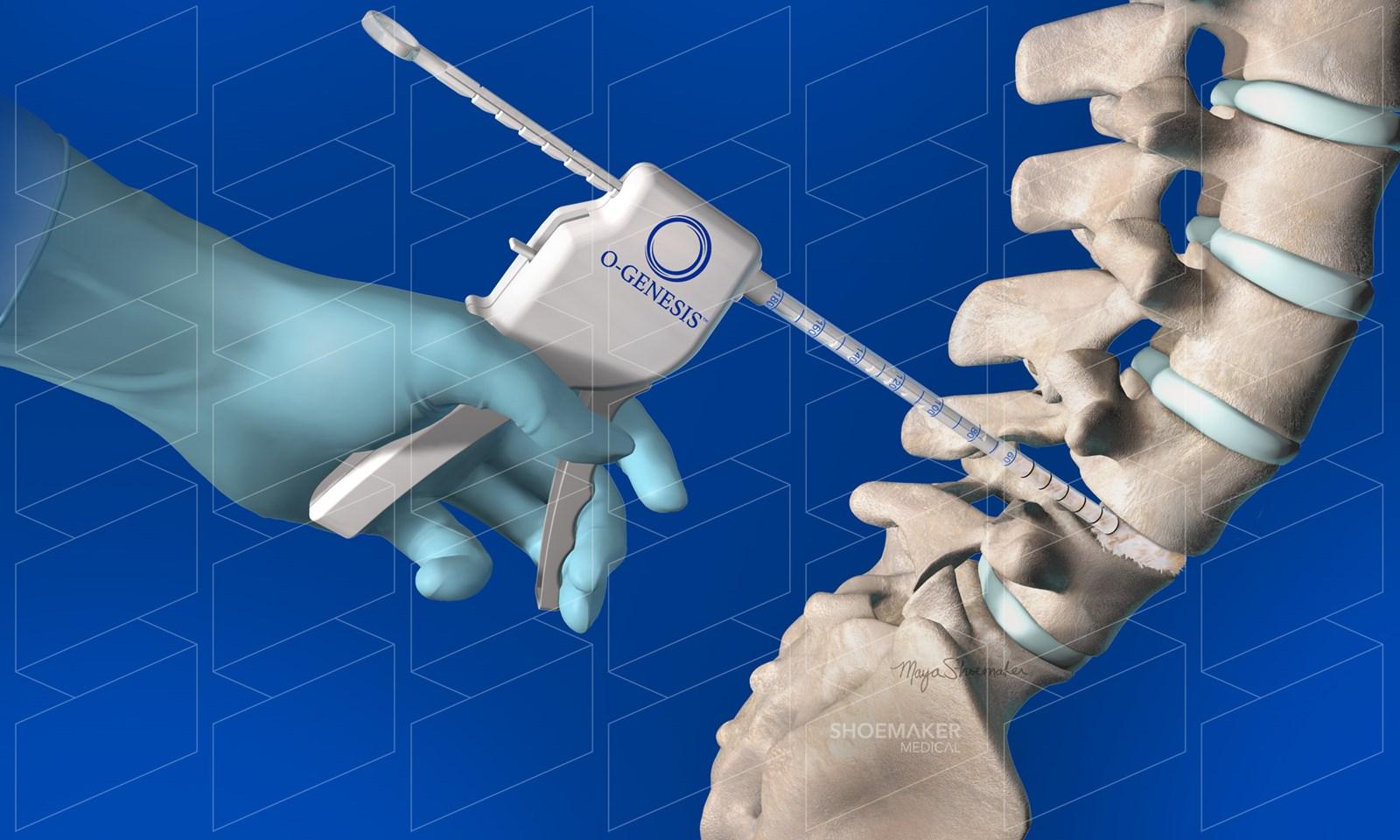 Biologics Applicator - Shoemaker Medical animation