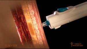 This 3D rendered image is displaying a medical tool called a jet-injector injecting into a humans body. The skin which it is injecting into is displayed in layers to inform the viewer exactly how it works.