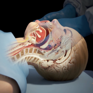 This is a 3D rendered image from the medical animation displaying a jaw-thrust airway position maneuver. The image is also displaying the internal organs inside the head of the figure so they can understand what the procedure is accomplishing.