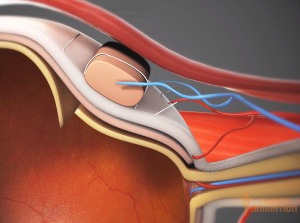 This still from the surgical animation displays extremely detailed close-up shots of the internal parts of the eye during a surgical procedure used to repair a retinal detachment.
