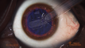 This is a close up image of the human eye rendered in trinity's 3D software displays the level of detail and realism that Trinity animators are able to reach in there surgical animations. This one demonstrates a cataract removal and lens replacement.