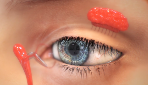 This 3D rendered image from the surgical animations displays an exterior close up of the human eye also featuring interior body parts to allow the viewers to see what is happening inside and outside of the body during Trinity'd eye surgery animations..