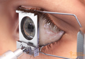 This is a 3D rendered image from one of Trinity's surgical animations displaying a medical tool holding eyelids open in preparation of a Lasik eye surgery procedure.