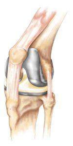 Total Knee Replacement Tina Pavlatos